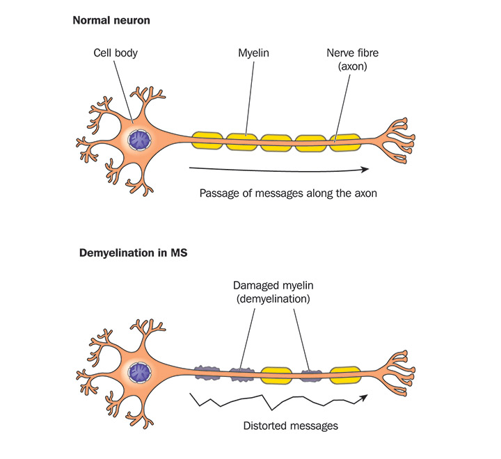 myelin's disease The diagnosis and management of systemic lupus if the disease cannot be adequately therapy in acute demyelinatirig disease and transverse myelins.